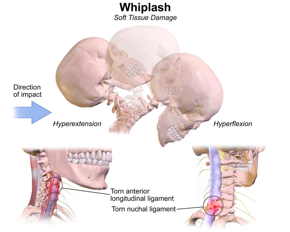 Whiplash Injury Claims: Essential Tips to Maximize Compensation