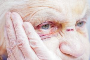 Injured elderly woman's eyes and nose