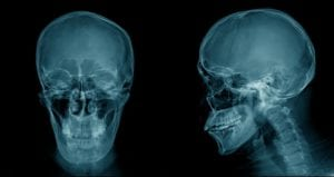 Front and side view of a skull x-ray image