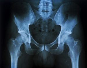X-ray image of the pelvis