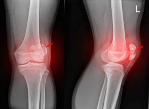 X-ray image of a fractured patella